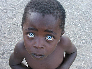 Dark-Skinned Boy with Blue Eyes